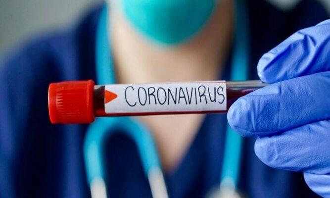 Korona Virüslü Günlerimiz